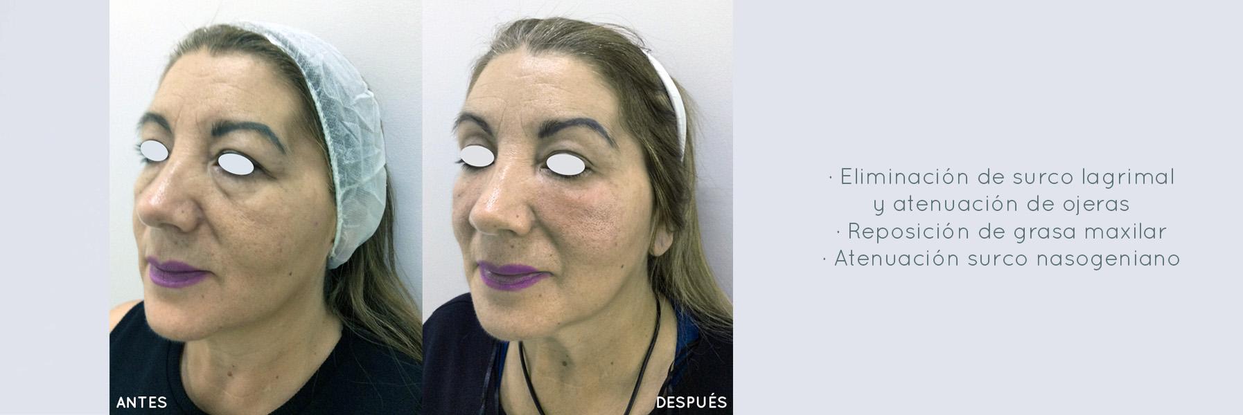 Clínica Dra. Zaror - Salud y Estética
